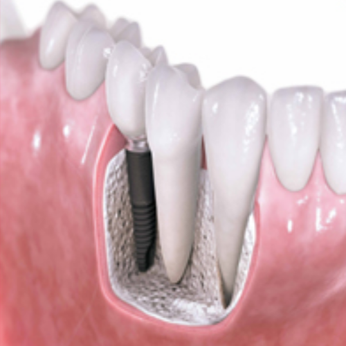individual tooth implants in Flowood